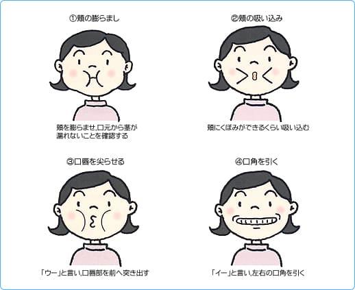 口腔乾燥症/口唇・頬の運動機能の評価およびトレーニング方法