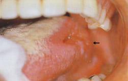 図2:左舌縁部に表面肉芽様の深い潰瘍